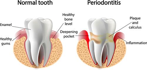 periodontal